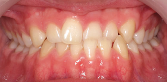 before quick straight teeth treatment