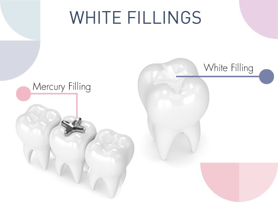 white fillings in northern ireland